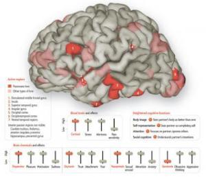 kerusakan-otak